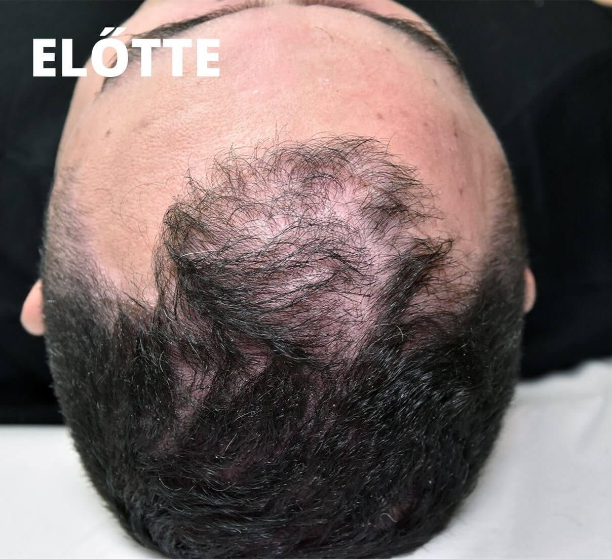 ELŐTTE (1)